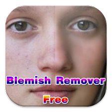 Blemish Remover Free
