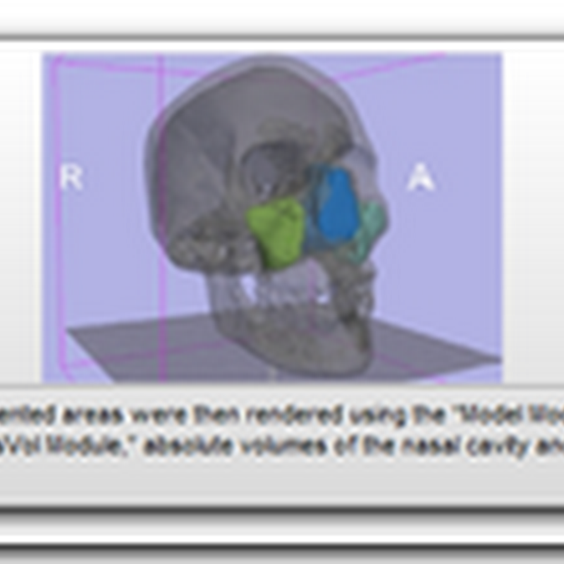 3D Slicer – Open Source Software for CT and MRI Radiology