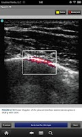 Screenshot of Pocket Atlas of ER Ultrasound