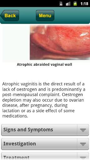 【免費醫療App】Your Rapid Diagnosis STD-APP點子