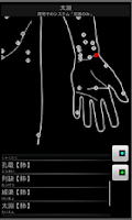 Screenshot of Acupuncture (tentative)