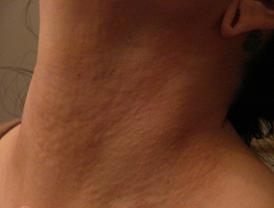 Mono rash
