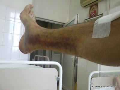 Piciorul drept