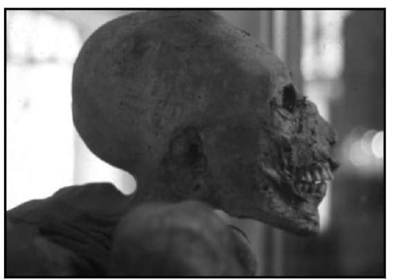 Inca cranial remains show that head-elongation was practiced by both ancient Peruvian and Egyptial royals as a means of physically distinguishing themselves from others missing an Atlantean heritage.