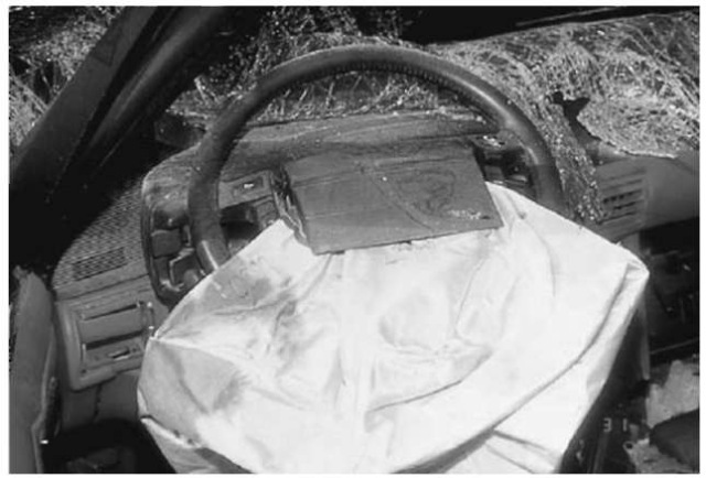 The injury-producing components of the air bag system are the air bag and the module cover which overlies it.
