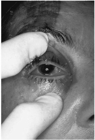 """This 1.72 m (5' 8"""") restrained patient suffered permanent retinal detachment secondary to air bag contact."""