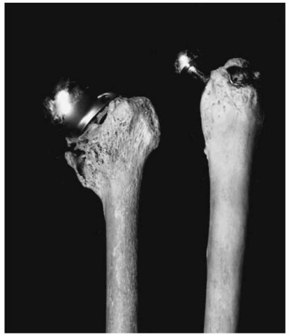 Prosthesis of the hip joint (Pretoria skeletal collection).