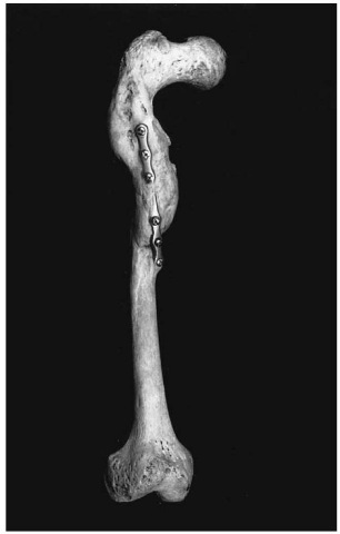 Surgical intervention following a femur fracture. Note the severe shortening of the bone (Pretoria skeletal collection).