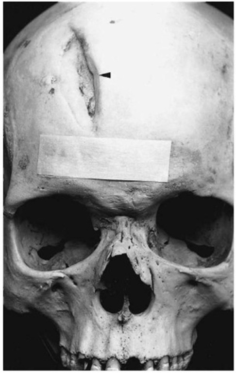 Healed sharp trauma on the skull (Pretoria skeletal collection).