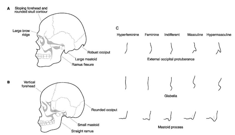 Sex differences in the skull (see Table 1). (A) Male features; (B) female features; (C) morphologic gradations.