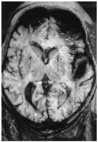 Contrecoup contusions of the frontal poles opposite to the point of impact (fall on the back of the head) with concomitant subarachnoid hematoma; traumatic intracerebral (sub-cortical) hematoma in the white matter of the right temporal lobe (in close vicinity to cerebral contusions in the overlying cortex).