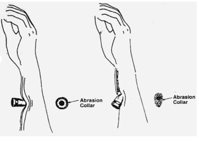 An abrasion collar is the abraided area of tissue surrounding the entrance wound created by the bullet when it dents and passes through the epithelium. The abrasion collar will vary with the angle of impact.