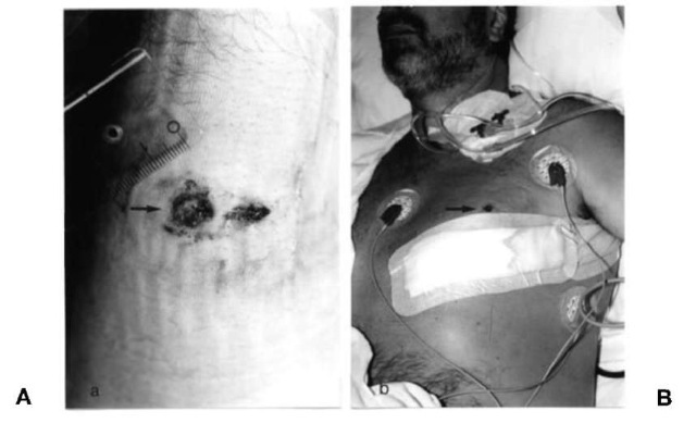 Entrance and exit wound of a caliber 0.32 bullet which first passed through the right forearm (A) and afterwards entered the chest (B). The victim had raised his arm when a burglar shot at him.