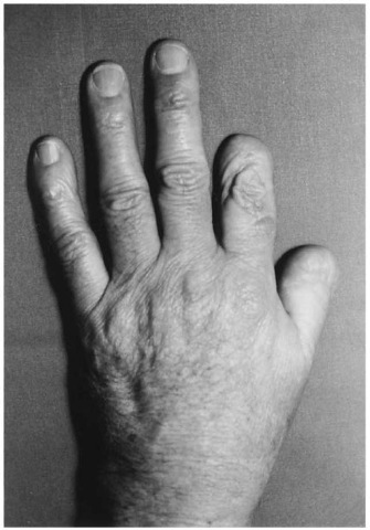 Left hand of a carpenter who injured himself accidentally when working with a milling machine. Note the oblique severance of the thumb and index finger. The distal phalanx of the middle finger was incompletely amputated and could be sewed on.