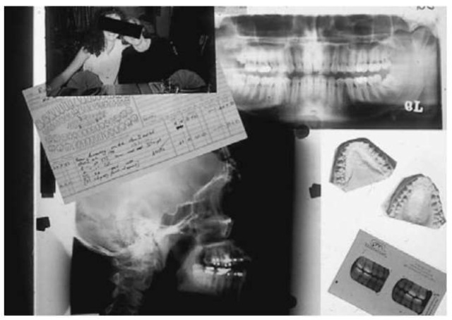 A selection of antemortem dental records in the form of written clinical records, accounts sent to the patient for payment, radiographs, plaster casts of the mouth and tooth crowns and photographs. This represents ample information in order to corroborate identity 'beyond reasonable doubt' and would suffice in a criminal investigation, which may follow from a mass disaster.