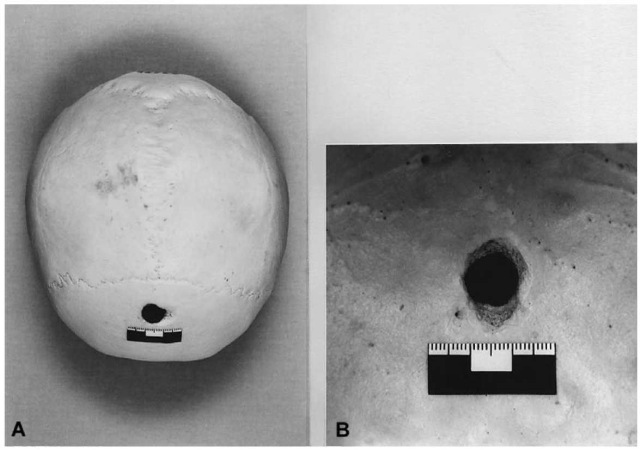 (A) Skull-cap of a suicide who shot himself in the forehead with a captive-bolt stunner. The punched-out entrance hole is located in the frontal squama. (B) Internal aspect of the skull showing a cone-shaped crater that is appreciably larger than the diameter of the bolt.