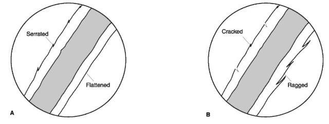 Comparison Microscopic