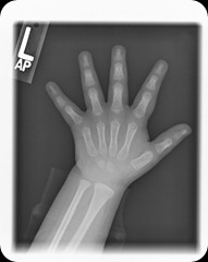 4 years old hand xray 4-17-2009