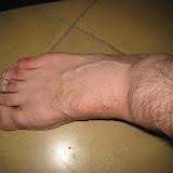 Lesió al turmell 2010