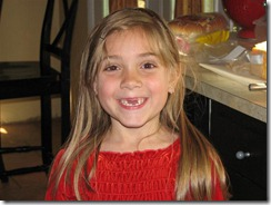 Lost two front teeth (1) (Medium)