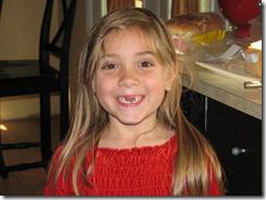 Lost two front teeth (1) (Medium)
