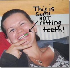 gum not rotting teeth