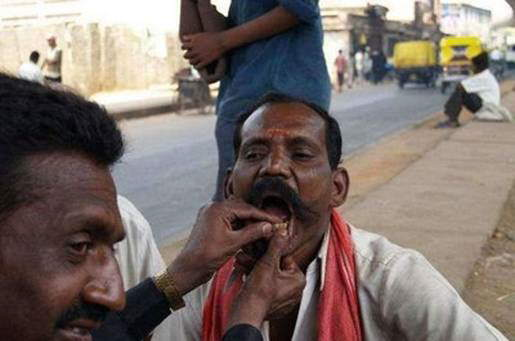 Street Dentists In India And China: Do you dare visit them? LOL