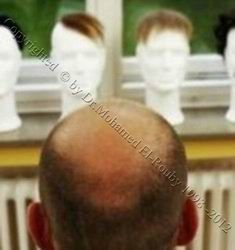 non surgical hair restoration