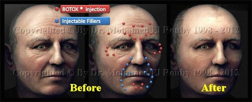 botox vs filler injections
