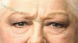 ترهل جفن العين