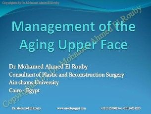 managment of upper face presentation