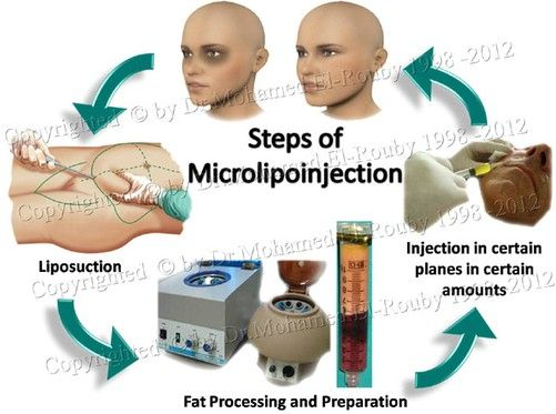 steps of fat processing