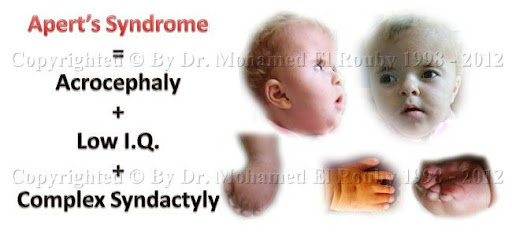 Syndromes related to Syndactyly
