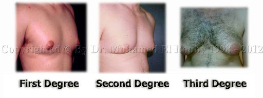 degree of gynecomastia