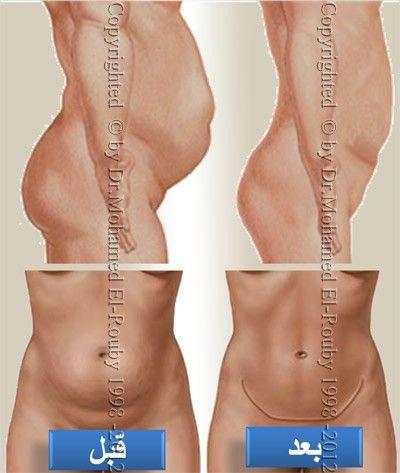 قبل و بعد شد جدار البطن