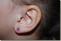 Ari got her ear_1115 4245
