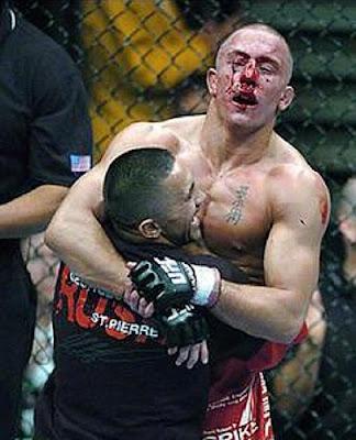 Жорж Сен-Пьер после боя с БиДжей Пенном на UFC 58