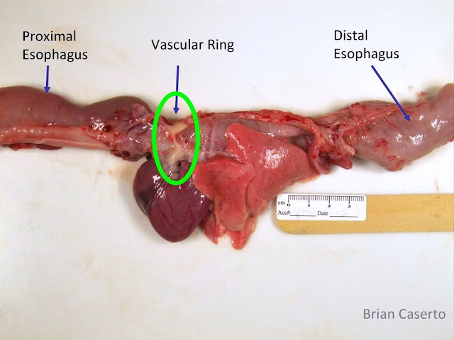 Real human esophagus - photo#8