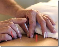 acupuntura2