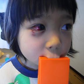右目が真っ赤になっちゃった