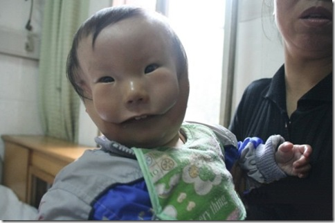 Transverse facial cleft  Boy Photo 4