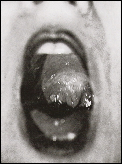 Jacques-André Boiffard, Mouth , Documents No5, 1929
