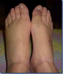 0409-Feet