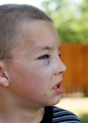 Austin's black eye