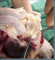 anatomia-ginocchio1