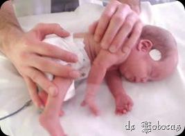 bebé de 720grs. y 7 meses de gestación