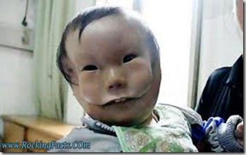 Chinese baby born with mask face 1