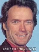 Clint Eastwood, 1978