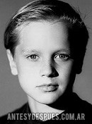 Devon Sawa, 