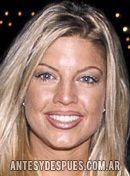 Fergie,